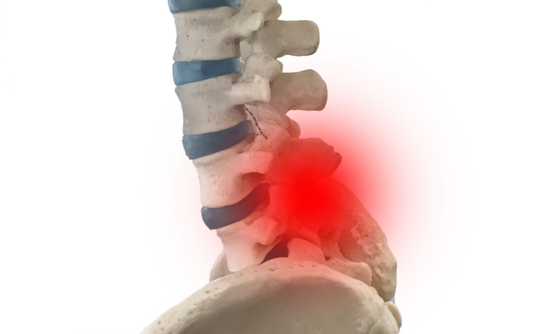 腰椎椎間板ヘルニア痛み