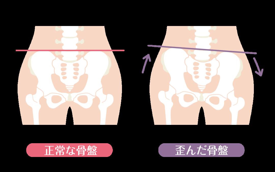 腰痛患者さん特有の「ある共通点」から見つけた               腰痛を改善する方法とは?